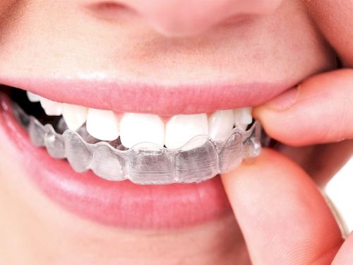 Conoces las fases del tratamiento con ortodoncia Invisalign®