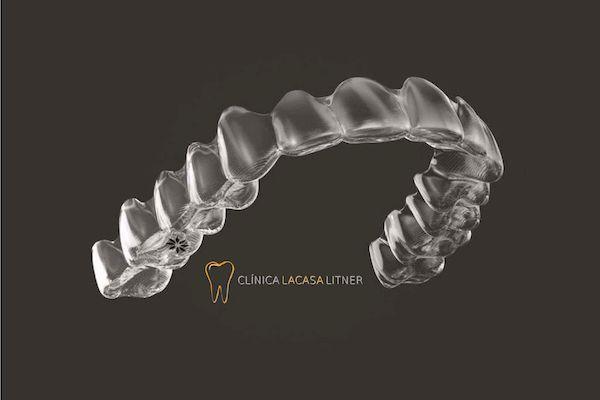 Las 5 fases del tratamiento con ortodoncia Invisalign®