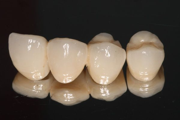 CORONAS SOBRE DIENTE NATURAL Prótesis dental