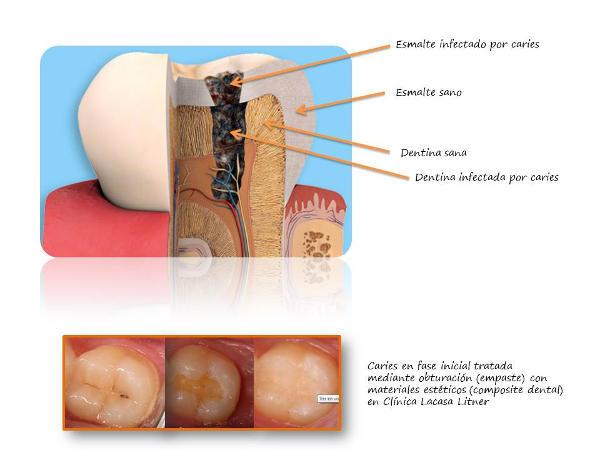 Opturación dental